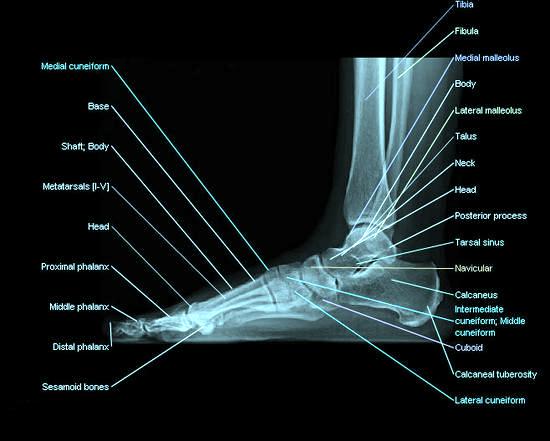 Foot-lateral-radiograph_imagelarge